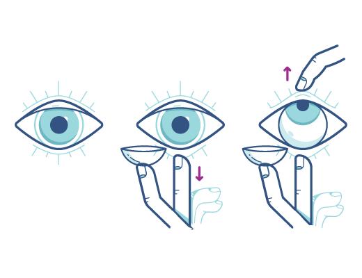 Terzo passaggio: inserire la lente a contatto nell'occhio