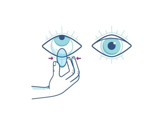 Stringi delicatamente la lente a contatto per rimuoverla