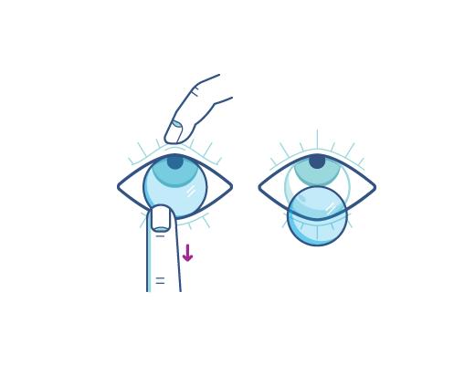 Rimuovi le lentine utilizzando l'indice della mano fino a toccare il bordo inferiore della lente.