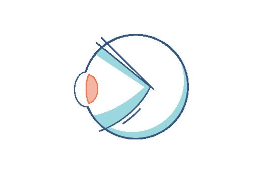 Illustrazione di un occhio affetto da presbiopia
