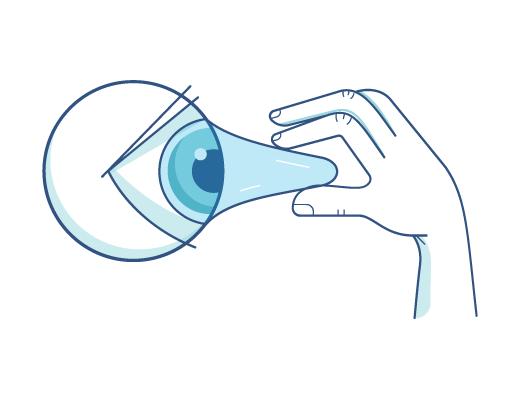 Togliere la lente a contatto dall'occhio