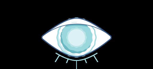 Illustrazione di un occhio torbido