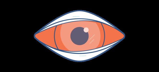 Illustrazione di un occhio rosso dolente dovuto a congiuntivite