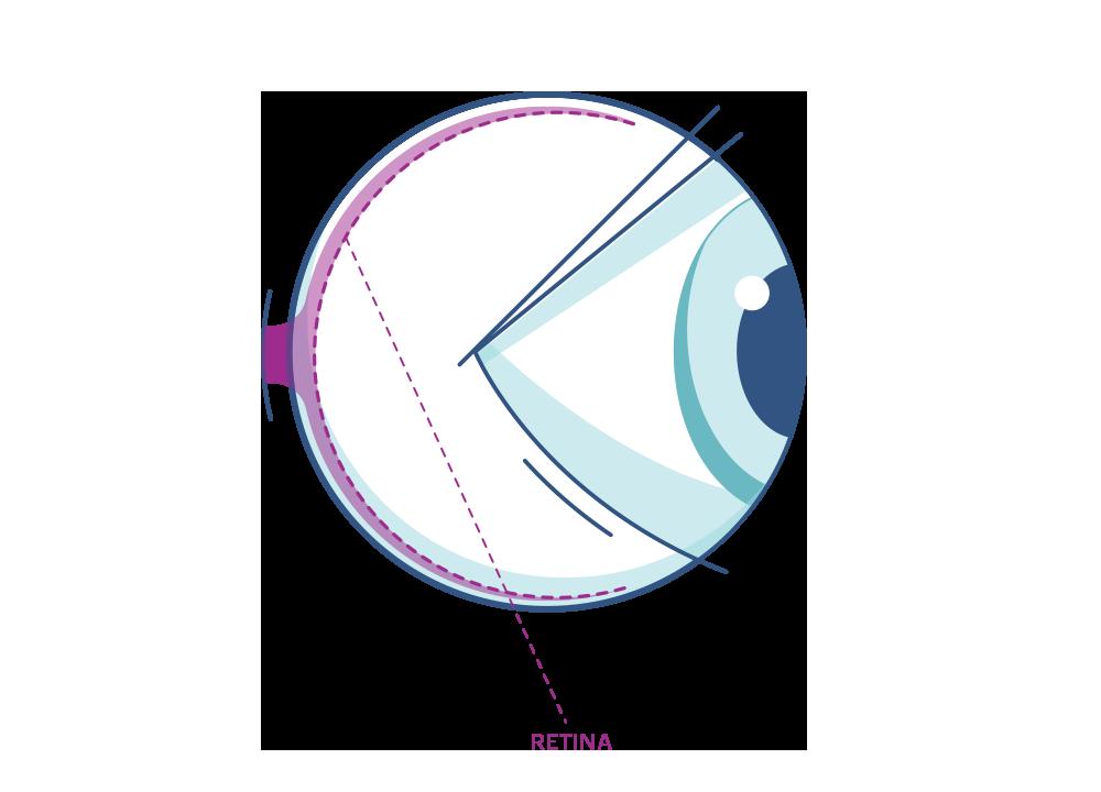 Illustrazione di un occhio mettendo in evidenza la retina