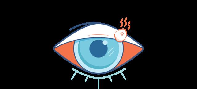 Illustrazione di un occhio rosso con un orzaiolo rosso doloroso