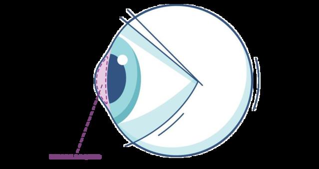 Illustrazione di un occhio mettendo in evidenza l'umor acqueo