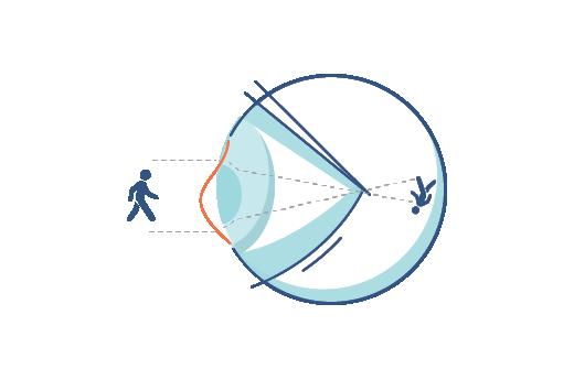 Illustrazione di un occhio affetto da astigmatismo