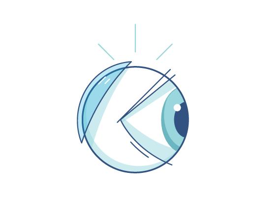 Illustrazione delle lenti a contatto dietro al bulbo oculare