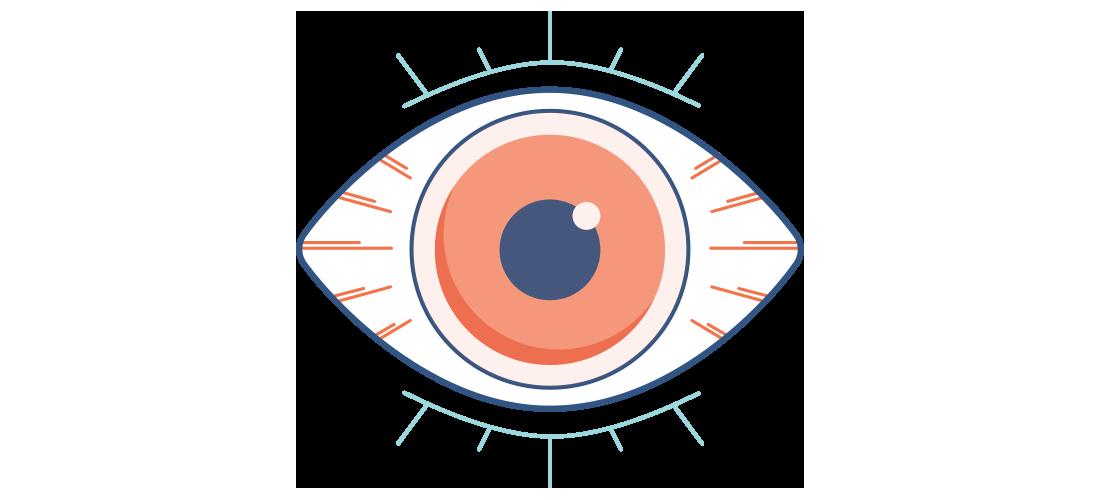 Illustrazione di un occhio secco, rosso e dolorante