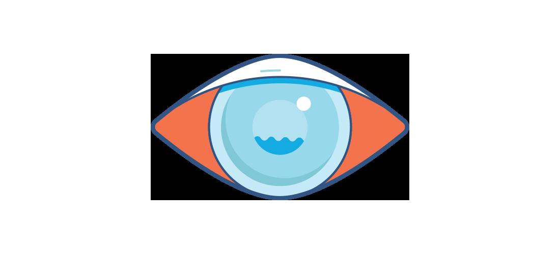 Illustrazione di un occhio rosso appannato